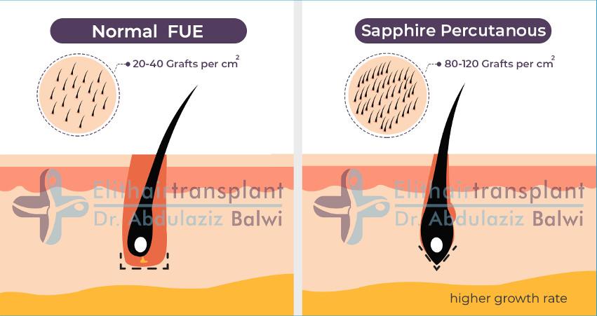 Sapphire Hair Transplant