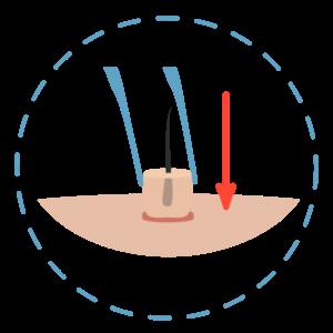 FUT Transplantacija kose
