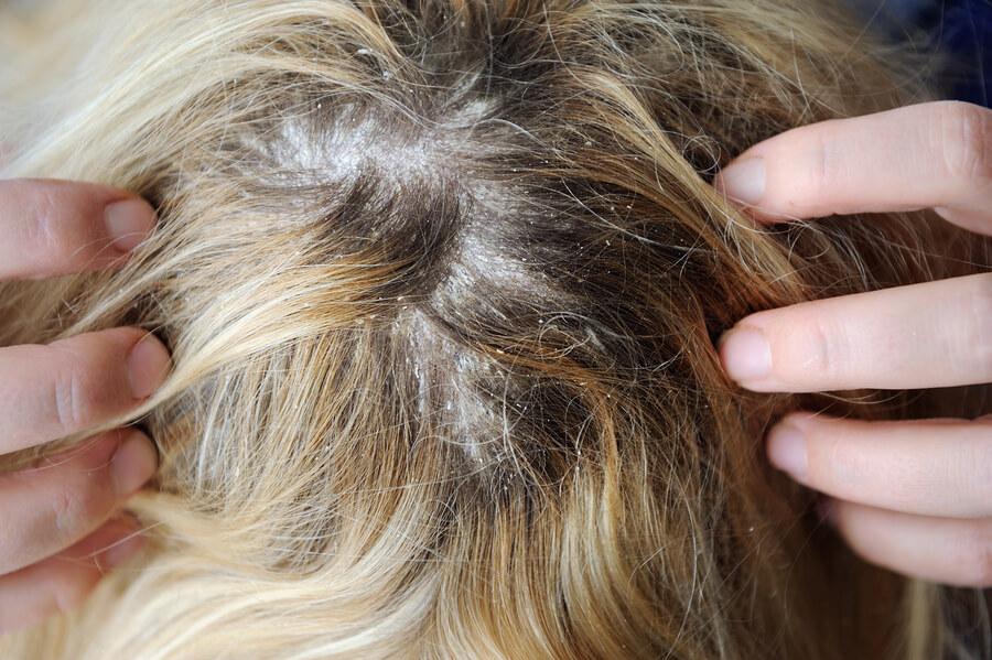 Opadanje kose zbog alergija