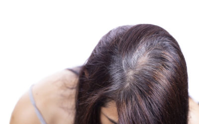 Opadanje kose sa slabim korenom